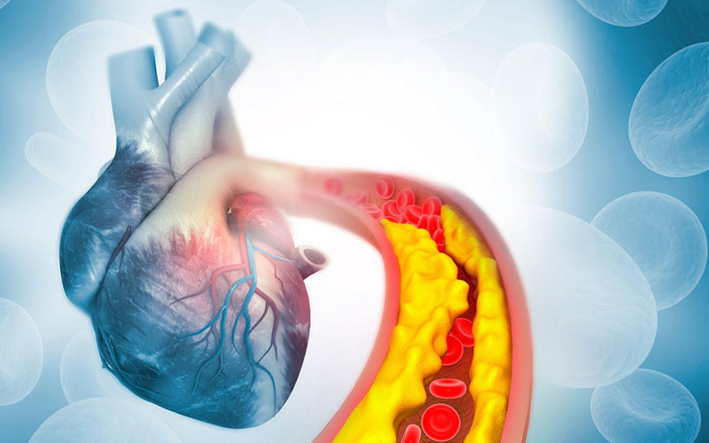 Colesterol e Triglicerídeos