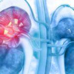 Doenças da Glândula Supra-Renal